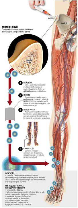 Tratamento Nacional com Células-tronco Evita Amputação de Pés