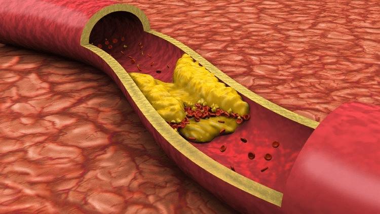 Colesterol: O Controle Pode Salvar Vidas