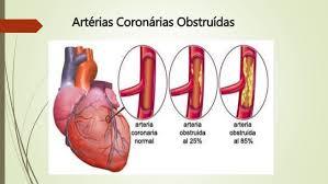 Associação entre HbA1c e Doença Arterial Coronariana