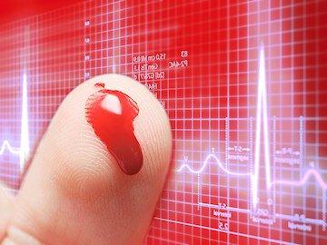 Qual Deveria Ser Meu Nível de Açúcar no Sangue?