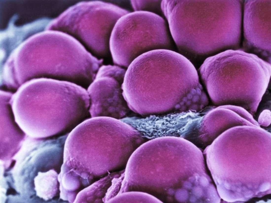 Obesidade: As Diferenças nas Células Adiposas Podem Predizer o Risco de Diabetes?