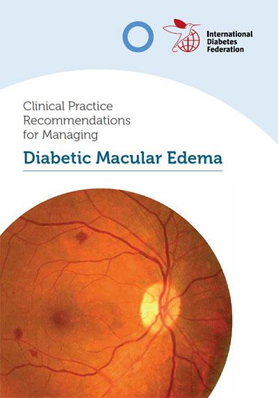 Edema Macular Diabético (DME)