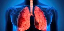 Pneumonia: Inflamação Não Controlada Mais Comum em COVID-19 com Diabetes