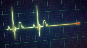 """Manter a Glicose Sob Controle"" para Impedir a Neuropatia Autonômica Cardíaca"