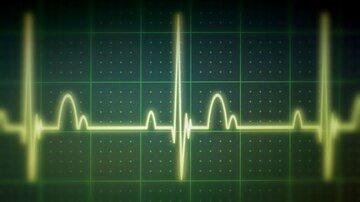 Alguns Pacientes com Diabetes Tipo 2 Apresentam Anormalidades Graves no ECG