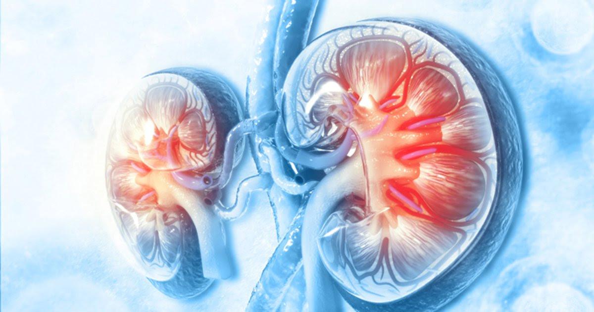 A Finerenona Reduz o Risco de Fibrilação Atrial (FA) de Início Recente na Doença Renal Diabética